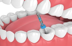 Root canal treatment in bilaspur